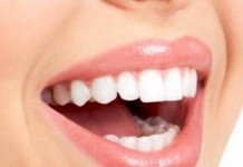 δόντια, λευκαντικό,