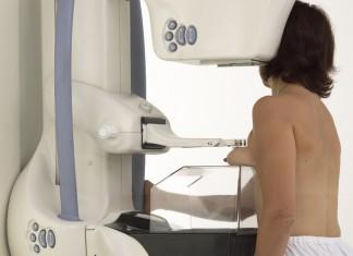 ΕΟΠΥΥ: Καλύπτει πλέον σωτήρια εξέταση για τον καρκίνο του μαστού