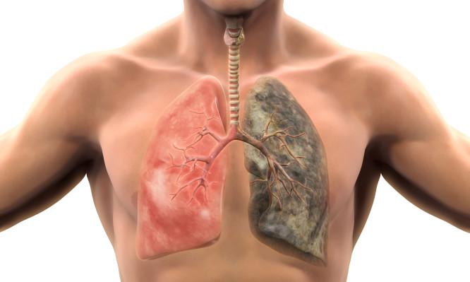 Καρκίνος πνευμόνων: Δείτε τα συμπτώματα που πρέπει να γνωρίζετε