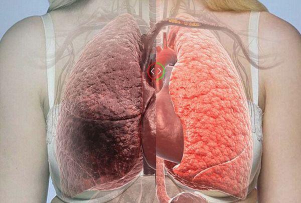 Κορονοϊός: Ανησυχητικό σύμπτωμα η δύσπνοια προειδοποιεί πνευμονολόγος