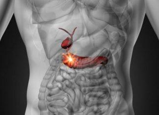 Καρκίνος στο πάγκρεας: Το σκληρότερο είδος καρκίνου