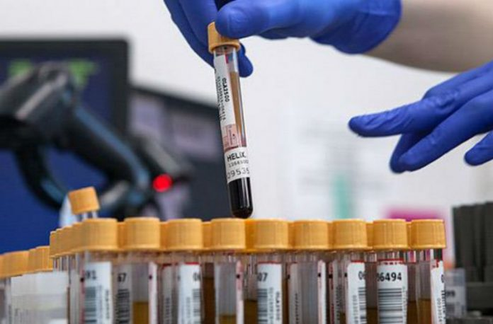 Με τεστ αίματος θα μπορείτε να δείτε αν τα προβλήματα μνήμης οφείλονται σε Αλτσχάιμερ ή άλλη αιτία