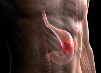 Καρκίνος στομάχου: Τα «ύπουλα» συμπτώματα