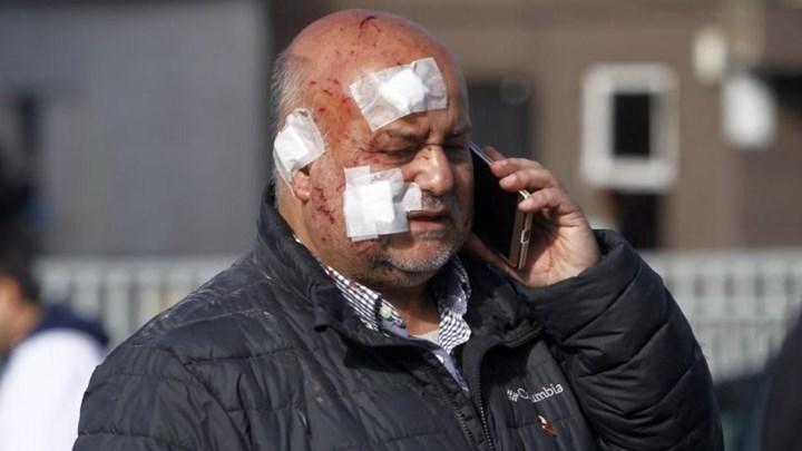 ΧΙΛΗ: Τρεις νεκροί και πενήντα τραυματίες από έκρηξη σε νοσοκομείο