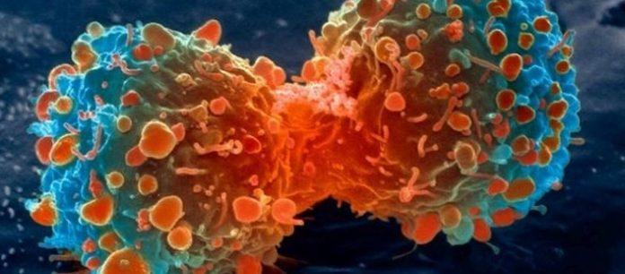 Ιατρικό επίτευγμα: Μετέτρεψαν καρκινικά κύτταρα σε λίπος