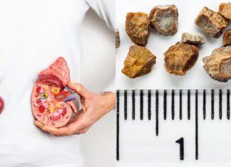Πέτρες στους νεφρούς: Συχνές ερωτήσεις