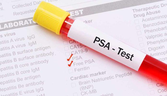 Τι πρέπει να ξέρουν όλοι οι άνδρες για το PSA