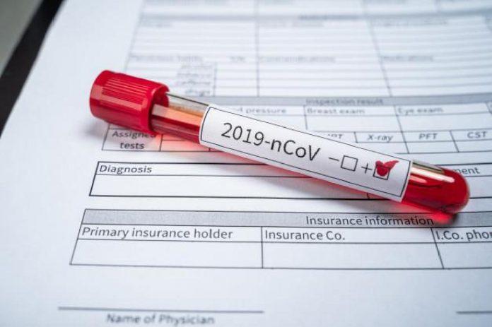 ΒΡΑΖΙΛΙΑ: 15.305 κρούσματα μόλυνσης από τον κορωνοϊό σε 24 ώρες